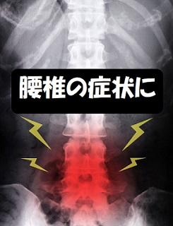 腰椎の症状